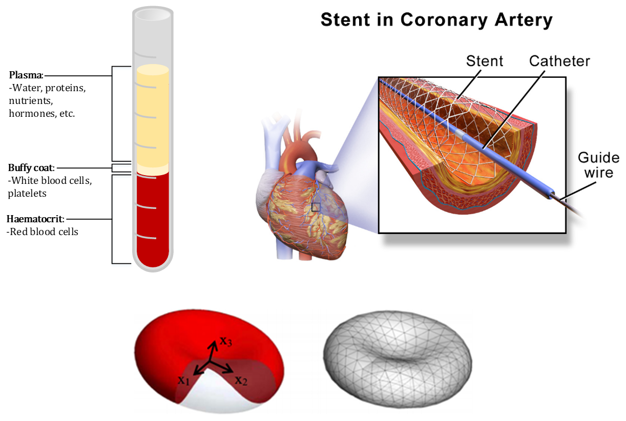 Healthy blood sample constituent diagram showing ~45% RBCs (top left), illustration of stent use (top right), and representation of RBC and equivalent discretised model (bottom) [1][2]